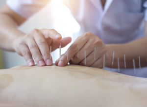 acupuncture is apart of the integrative and regenerative medicine practices offered at CRC Institute