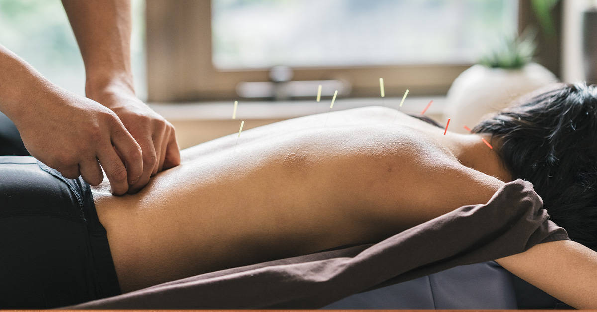 Male rehab patient undergoing acupuncture at CRC's rehab center in Chicago