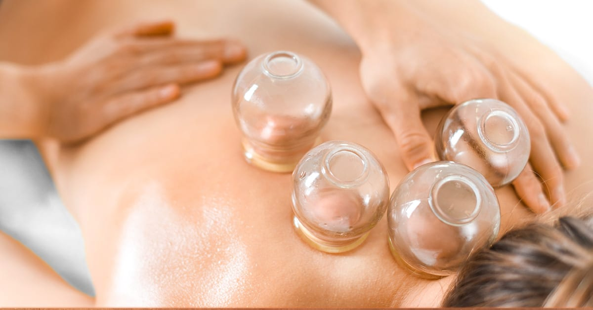 Male rehab patient at CRC's rehab center in Chicago undergoing cupping to alleviate his inflammation.